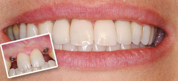 implantatsiya-zubov[1]