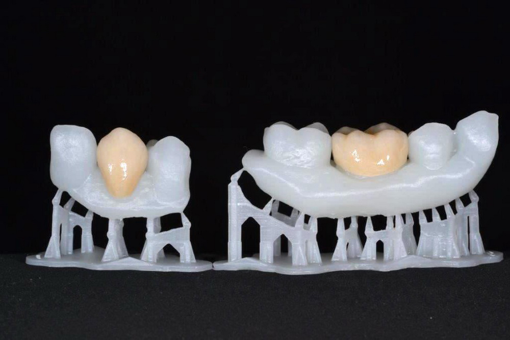 Douw_Formlabs_3_Glazed_crowns_gnz0Z6X[1]