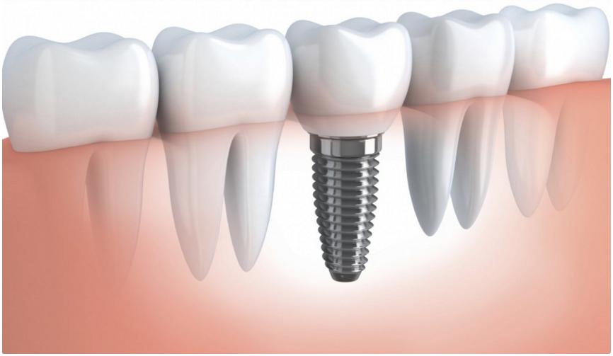 Правда ли что при установке зубных имплантов нельзя употреблять спиртное и курить