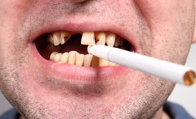 1442349566_smokers_have_less_teeth_than_nonsmokers[1]