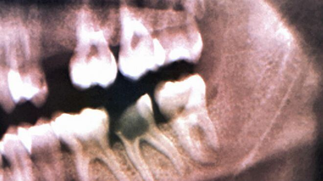160414093827_teeth_x-rayed_624x351_zephyrspl_nocredit[1]