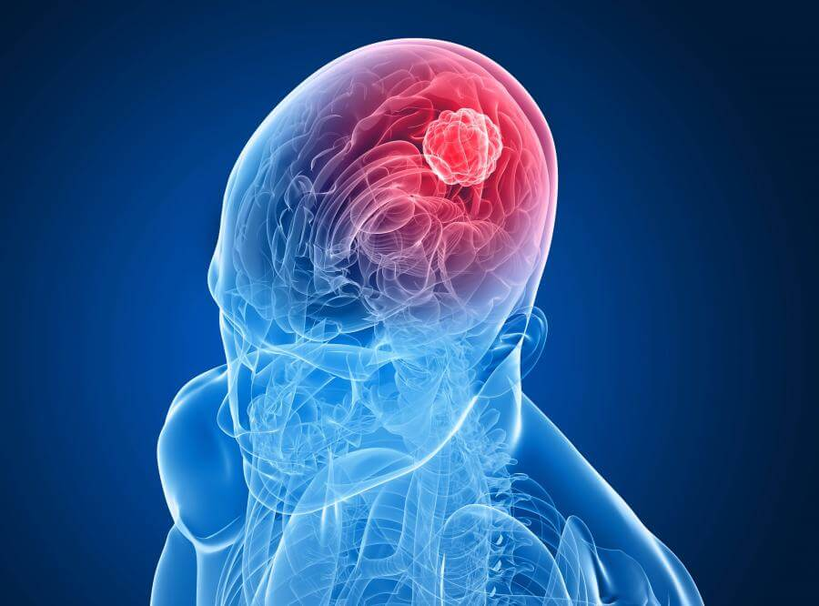 1894156-nowotwor-mozg-glowa-rak-guz-900-666[1]