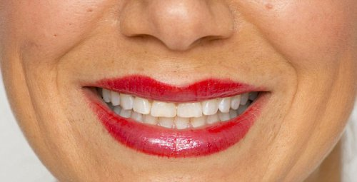 otbelivanie-zubov2[1]