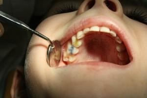 """В детской стоматологии не """"ставят пломбы"""", а """"залепливают жвачкой домики для червяков""""."""