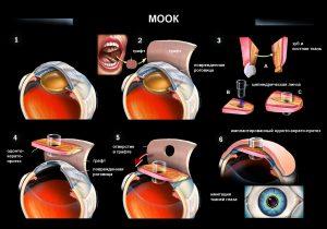 mookp-procedureforuseonbwblogpost_copy1